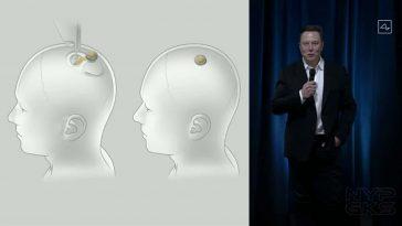 Neuralink-brain-implant-prototype-NoypiGeeks